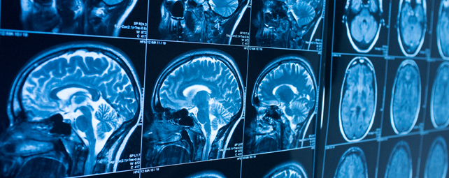 neurochirurgie marie curie