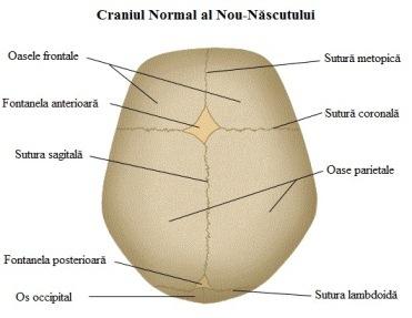craniostenoza