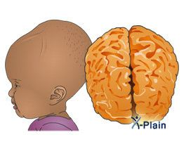 hidrocefalie