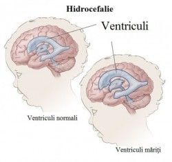 ventriculi hidrocefalie
