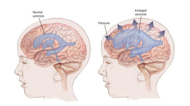 hidrocefalie și probleme de memorie